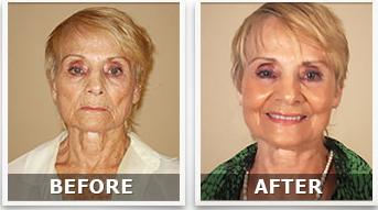 LifeCell Skin Cream - Olga Suarez Testimonial